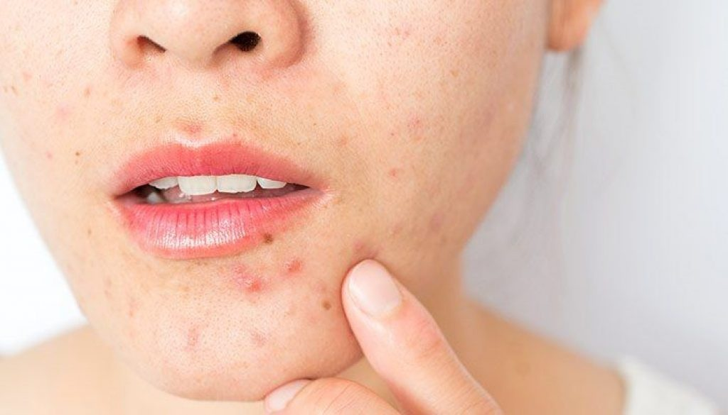 How to Pick the Right Korean Moisturizer & Hide Acne Scars?